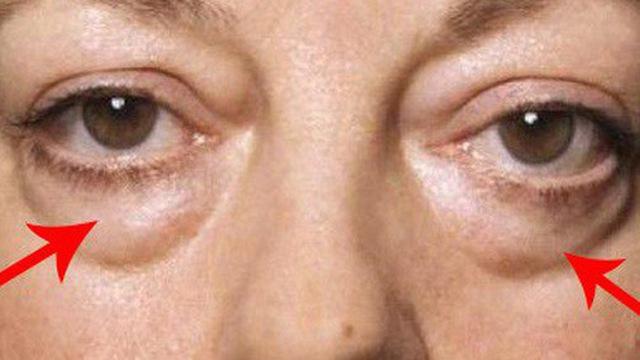Bọng mắt cảnh báo điều gì?